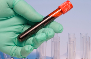 blood in test tube